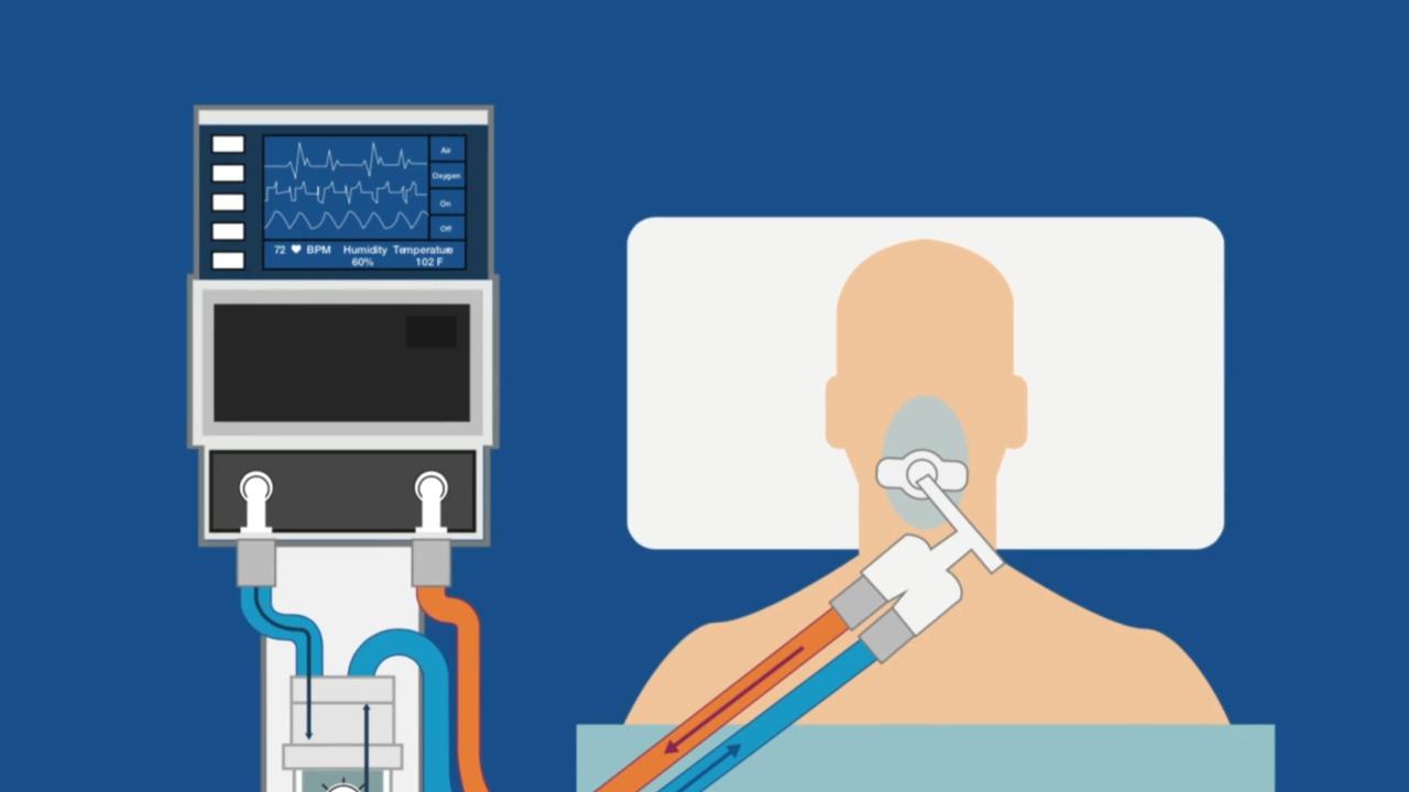 Video-Engineering-Challenges-to-Making-Ventilators.jpg