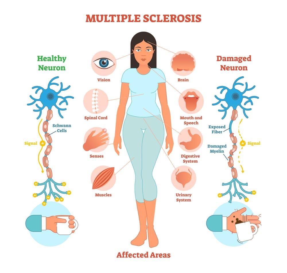 multiple-sclerosis-wecapable.jpg