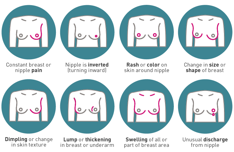 breast-cancer-signs-and-symptoms.jpg