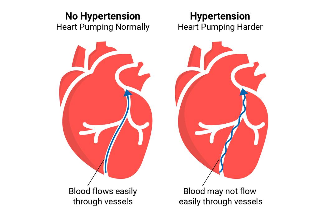 Hypertension Illustration.png