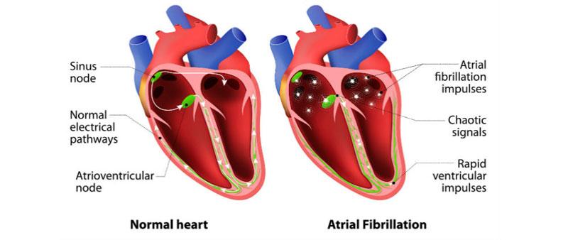 irregular-heartbeat-treatment.jpg
