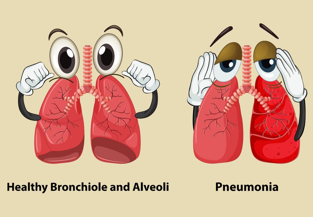 diagram-showing-healthy-and-pneumonia-lungs-vector-9914095.jpg