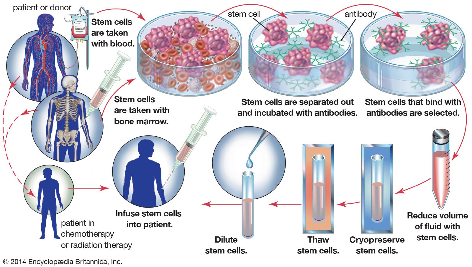bone-marrow-stem-cells-cancer-radiation-chemotherapy.jpg