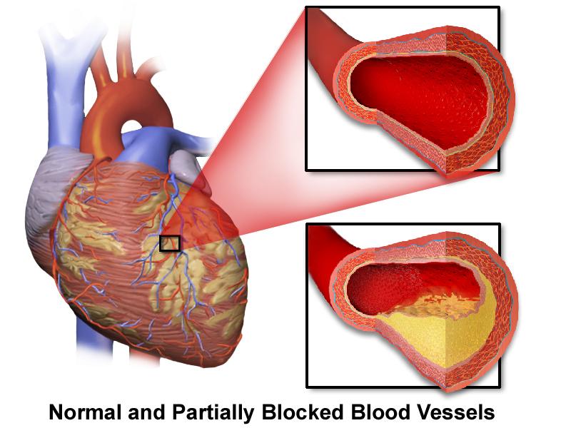 Coronary_Artery_Disease.png