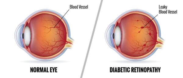 Diabetic-Retinopathy-600x257.png