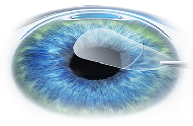 Refractive error correction methods (Part 2)